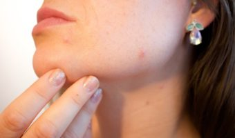 Practical Steps For Acne Treatment